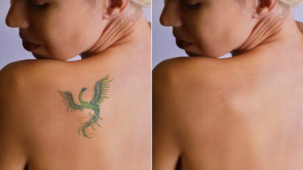 Retirer votre tatouage au laser au maroc